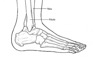 Ankle Fracture 2